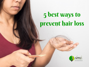 5 best ways to prevent hair loss