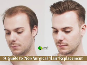 A Guide to Non Surgical Hair Replacement