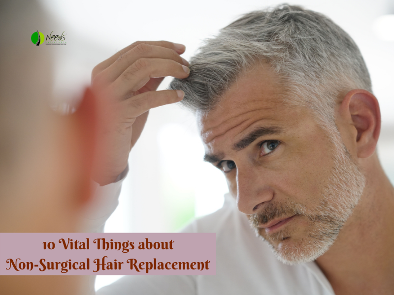 10 Vital Things about Non-Surgical Hair Replacement