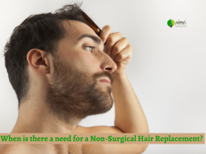 When is there a need for a Non-Surgical Hair Replacement?
