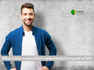 What is non-surgical hair replacement? Is it good or bad