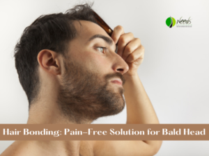 Hair Bonding: Pain-Free Solution for Bald Head