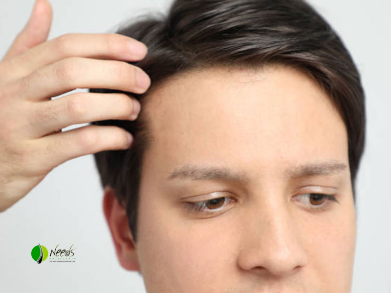 5 Benefits of Hair System