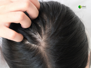 Tips for Daily Hair System Wearers