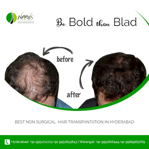 DHT Hair Transplant Centre in Hyderabad