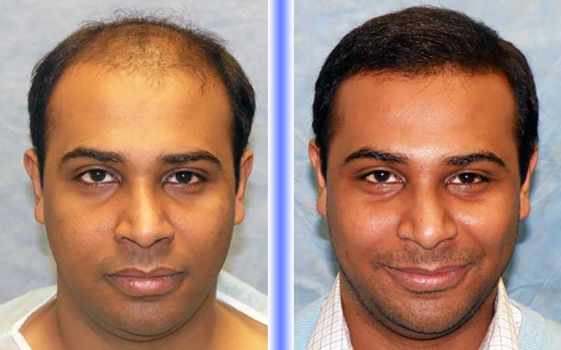DHI Hair Transplant Centre in Hyderabad