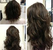 Non Surgical Hair Replacement in Hyderabad