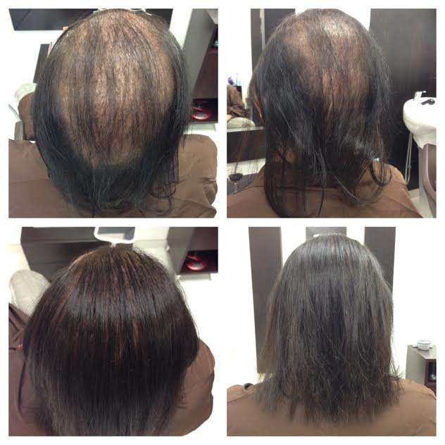 Womens Hair Transplant Centre in Hyderabad